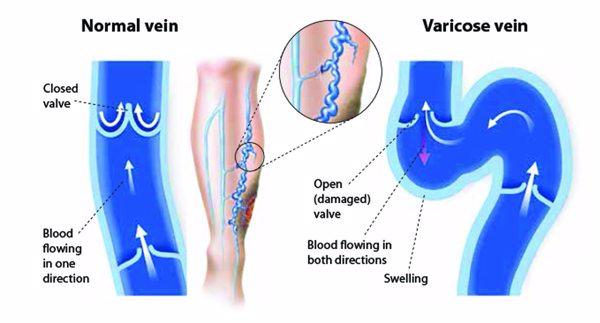 varicoză venele mazi gels cum să curățați varicoza